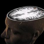 تشخیص زودهنگام بیماری اوتیسم با اسکن مغزی