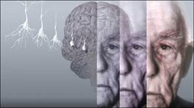 تاخیر در بازنشستگی خطر آلزایمر را کاهش میدهد