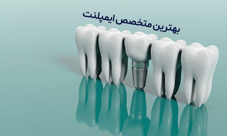 جنس ایمپلنت دندان